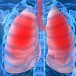 Пневмония2