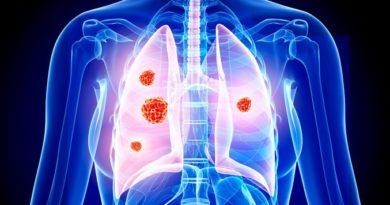 Клиническое исследование INTR@PID Lung 037